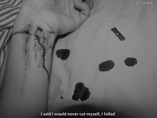 b&w, black & white, black and white, cut, cut myself